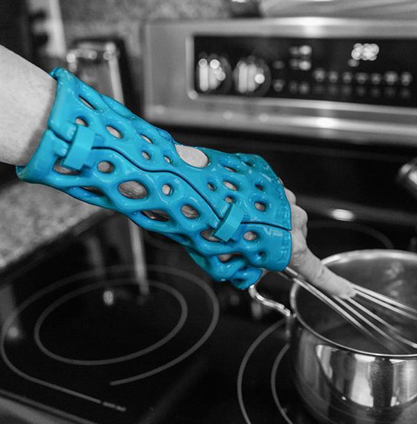 activ-armor-uses-3d-scanning-create-breathable-water-safe-alternative-casts-splints-3.jpg